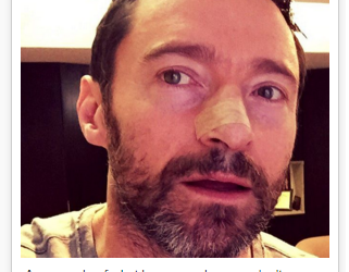 Hugh Jackman's Skin Cancer