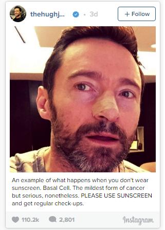 Hugh Jackman's Skin Cancer